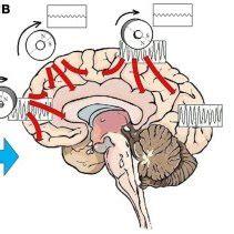 Research on major depressive disorder pdf